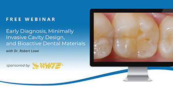Early Diagnosis, Minimally Invasive Cavity Design, and Bioactive Dental Materials